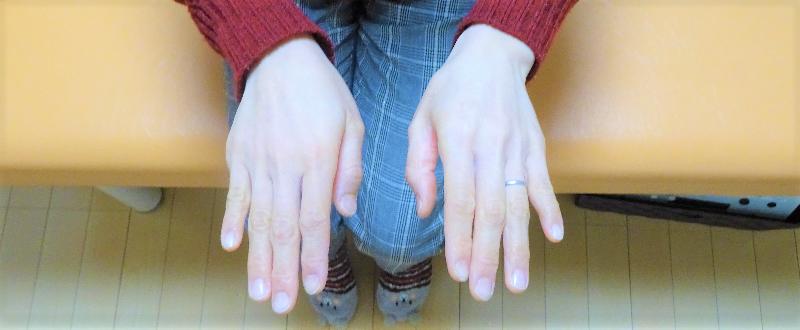左前腕と母指が内旋の歪み