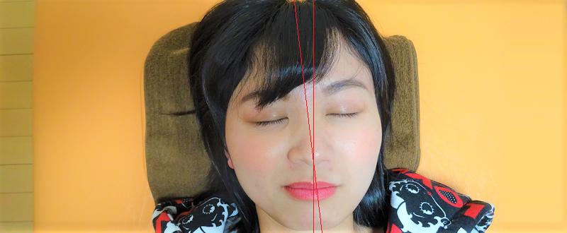 左右の顎関節の歪みがはっきり分かるライン入り