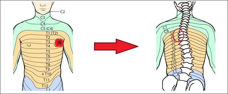 肋間神経痛の歪みと痛みの関係