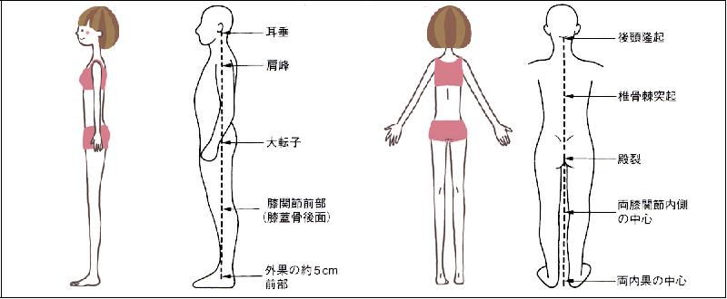 姿勢が異常か正常化の判断基準