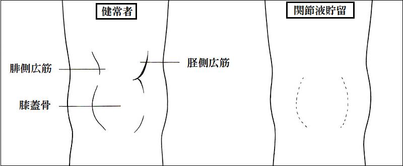 腓側広筋や側広筋と膝蓋骨で作られるくぼみと膝蓋骨の膨隆