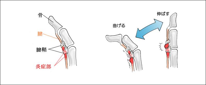 腱鞘炎の説明
